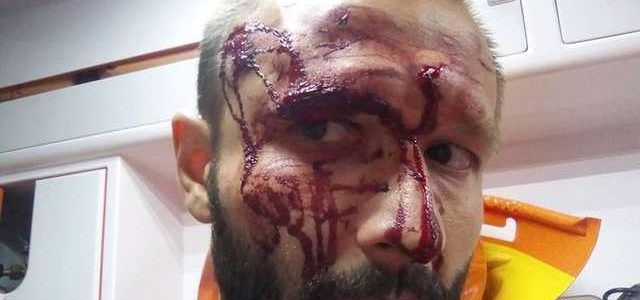 В Киеве жестоко избили журналиста и отобрали ноутбук с материалами