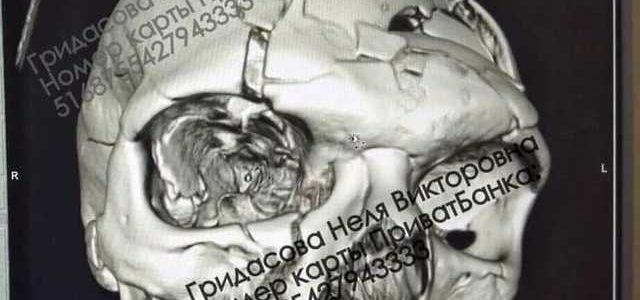 В Каменском жестоко избит известный хирург: разбита половина черепа
